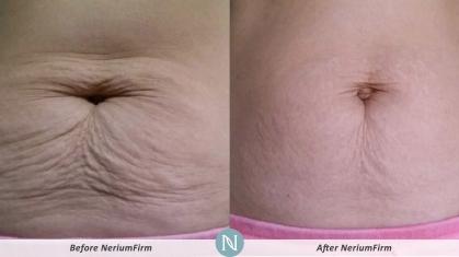 neriumfirm-cust12